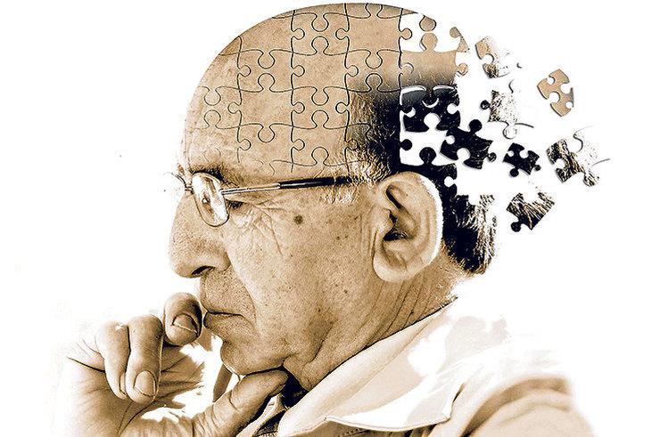 Альцгеймер ауруы қандай ауру? - на weekend.bugin.kz